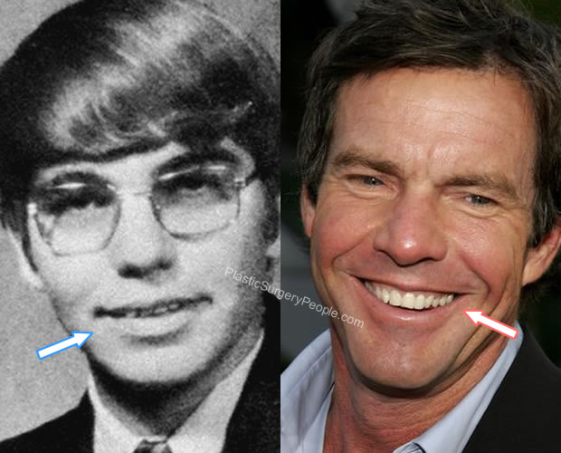 What about Dennis Quaid's teeth?