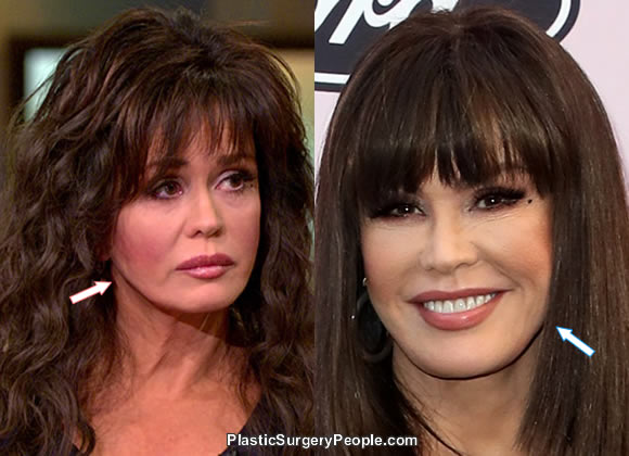 Did Marie Osmond have botox and a facelift?