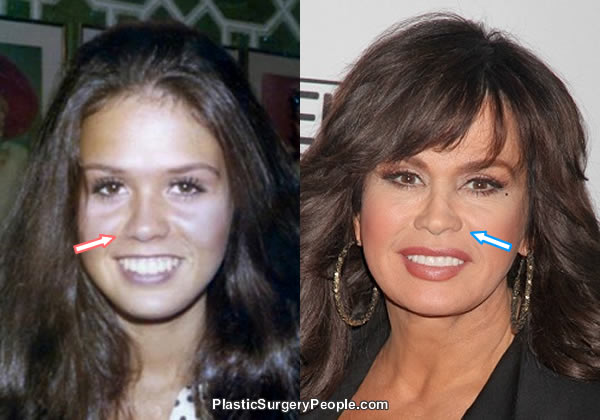 Did Marie Osmond have a nose job?