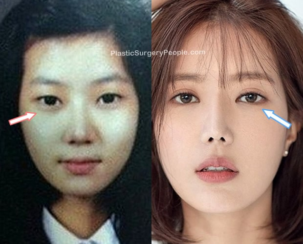 Did Im Soo Hyang have eyelid surgery?