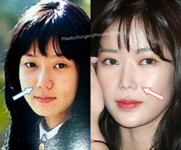 Did Im Soo Hyang have a nose job?
